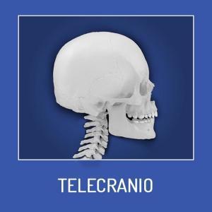 Telecranio