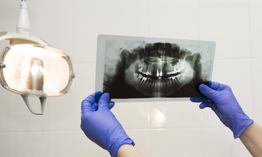 rx dental refertazione odontoiatrica